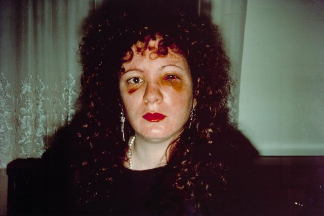"Nan Goldin, ""Nan One Month After Being Battered, 1984,"" silver dye bleach print, printed 2008 (the Museum of Modern Art, New York. Purchase)"
